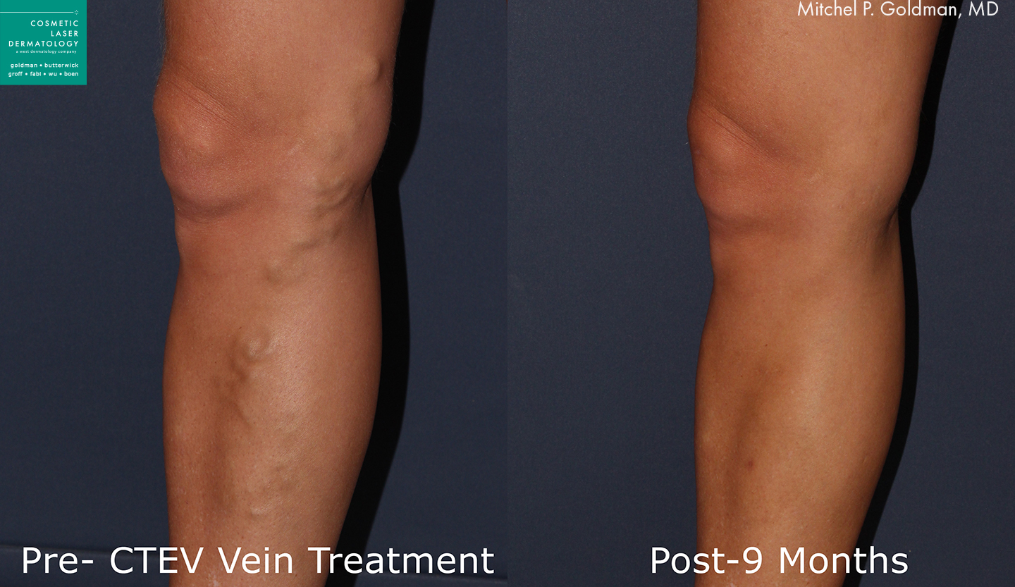 CTEV to remove varicose veins by Dr. Goldman. Treatment removes visible veins that were protruding above the skin's surface.