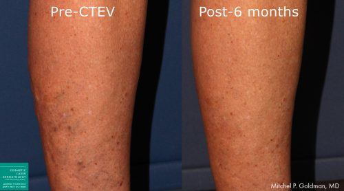CTEV to treat varicose veins by Dr. Goldman. After treatment, bulging veins are visibly reduced.