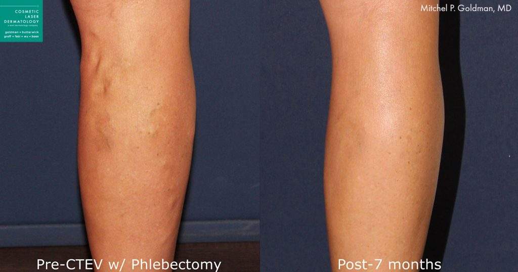 CTEV for leg veins by Dr. Goldman. Disclaimer: Results may vary from patient to patient. Results are not guaranteed.