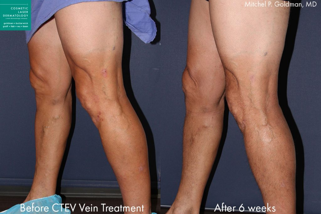 CTEV to treat leg veins by Dr. Goldman. Disclaimer: Results may vary from patient to patient. Results are not guaranteed.