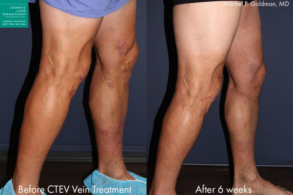 CTEV to treat varicose veins by Dr. Goldman. Disclaimer: Results may vary from patient to patient. Results are not guaranteed.