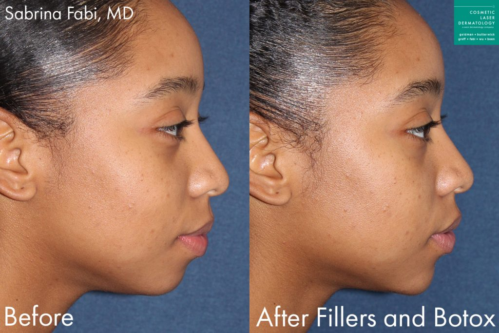 Filler and Botox for facial contouring by Dr. Fabi. Disclaimer: Results may vary from patient to patient. Results are not guaranteed.