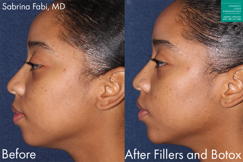 Fillers and Botox for facial contouring by Dr. Fabi. Disclaimer: Results may vary from patient to patient. Results are not guaranteed.