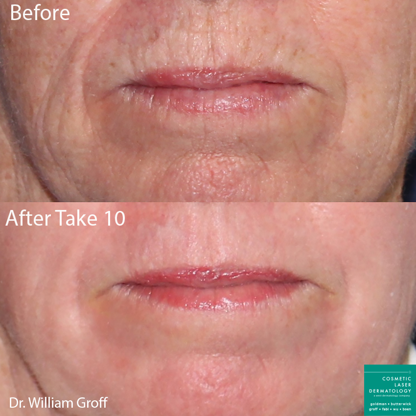 Take 10 treatment with laser resurfacing using Vbeam, Alexandrite, and Fraxel lasers to rejuvenate the skin by Dr. Groff. Disclaimer: Results may vary from patient to patient. Results are not guaranteed.