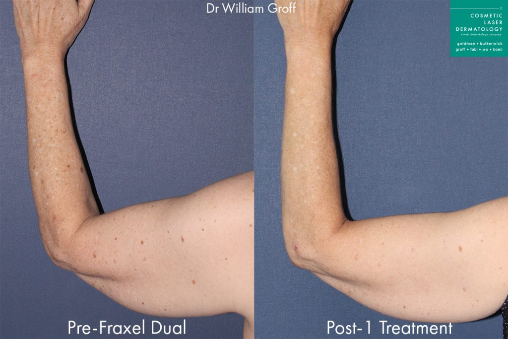Fraxel Dual to treat sun damage on the arm by Dr. Groff. Disclaimer: Results may vary from patient to patient. Results are not guaranteed.