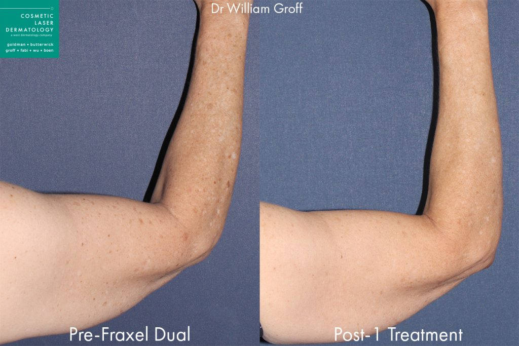 Fraxel Dual to treat sun damage on arm by Dr. Groff. Disclaimer: Results may vary from patient to patient. Results are not guaranteed.