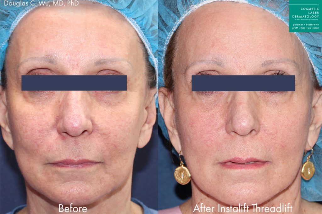 Silhouette Instalift threadlift to rejuvenate the skin and reverse aging symptoms by Dr. Wu. Disclaimer: Results may vary from patient to patient. Results are not guaranteed.