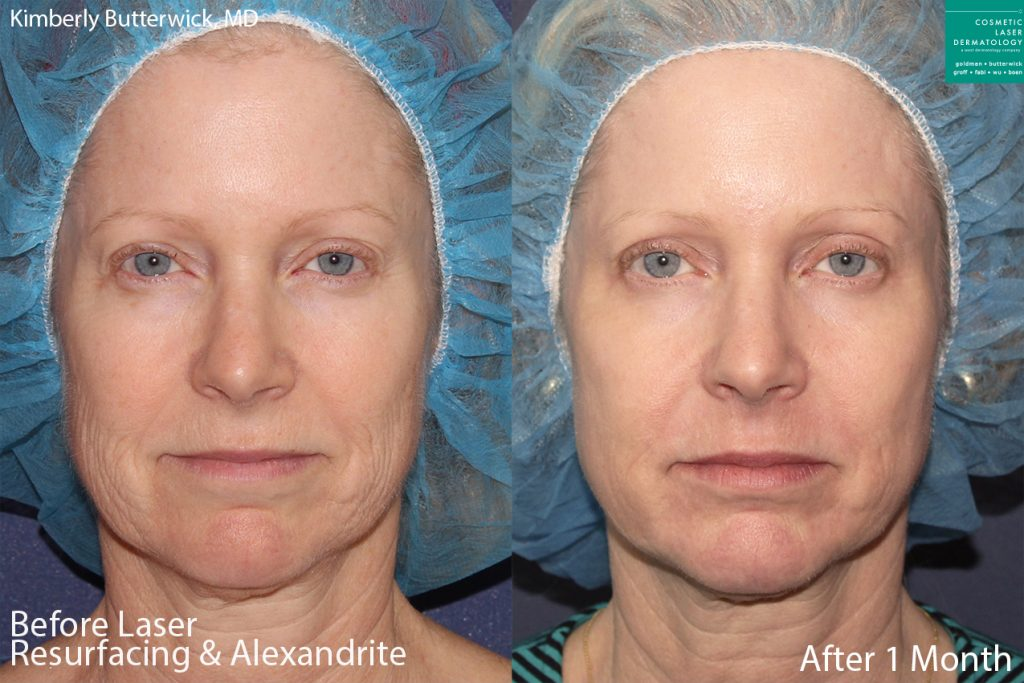 Laser resurfacing and Alexandrite laser to rejuvenate the skin by Dr. Butterwick. Disclaimer: Results may vary from patient to patient. Results are not guaranteed.