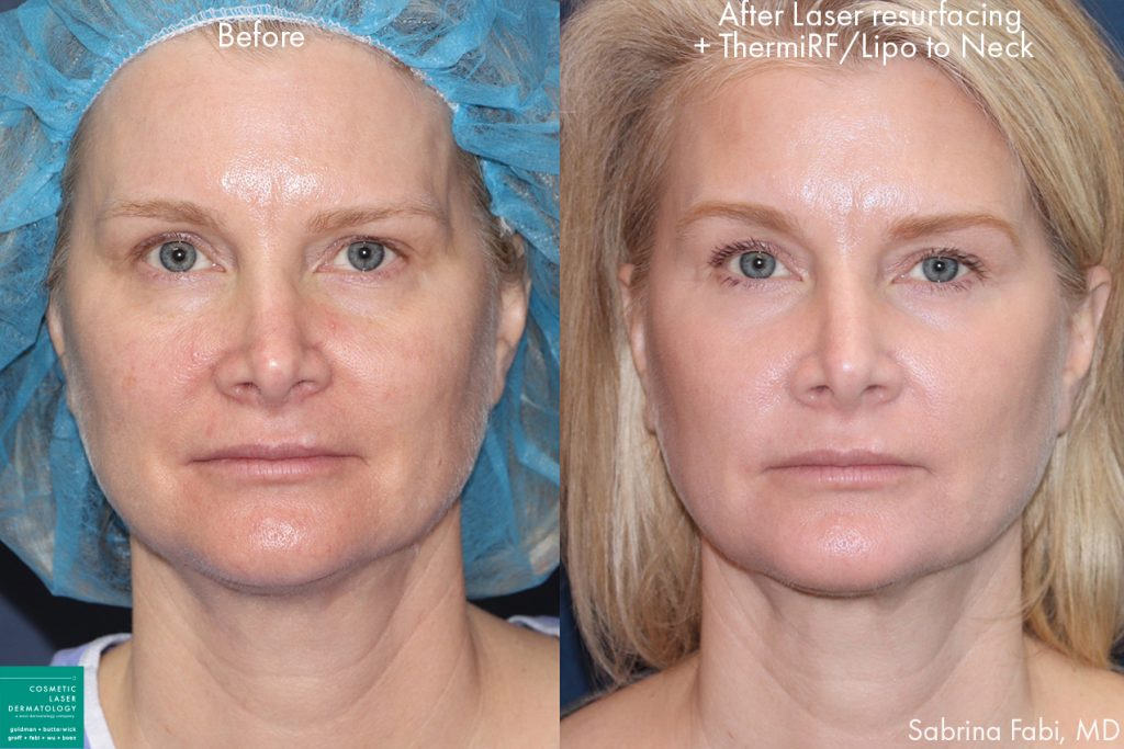 Laser resurfacing, ThermiRF, and neck lipo for rejuvenation and contouring by Dr. Fabi. Disclaimer: Results may vary from patient to patient. Results are not guaranteed.