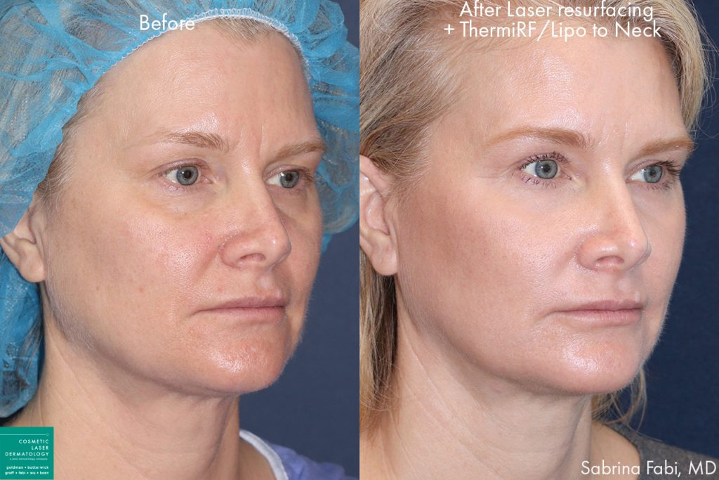 Laser resurfacing, ThermiRF, and neck lipo to rejuvenate the appearance by Dr. Fabi. Disclaimer: Results may vary from patient to patient. Results are not guaranteed.