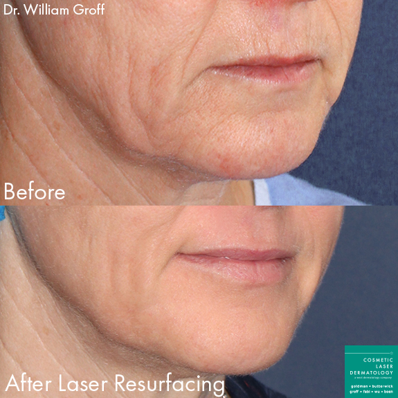 Laser resurfacing to rejuvenate the skin around the mouth by Dr. Groff. Disclaimer: Results may vary from patient to patient. Results are not guaranteed.