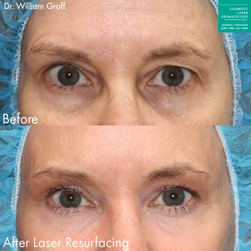 Laser resurfacing for skin rejuvenation around the eyes by Dr. Groff. Disclaimer: Results may vary from patient to patient. Results are not guaranteed.