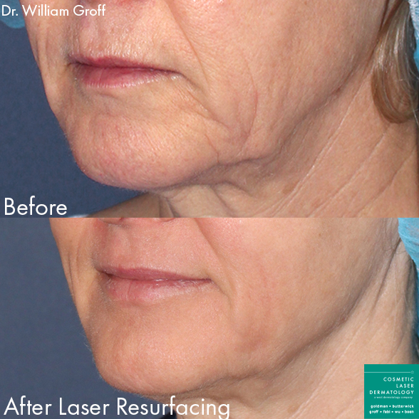 Laser resurfacing to rejuvenate skin around the mouth by Dr. Groff. Disclaimer: Results may vary from patient to patient. Results are not guaranteed.