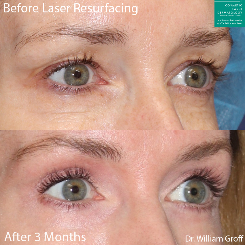 Laser resurfacing to refresh the eye area by Dr. Groff. Disclaimer: Results may vary from patient to patient. Results are not guaranteed.