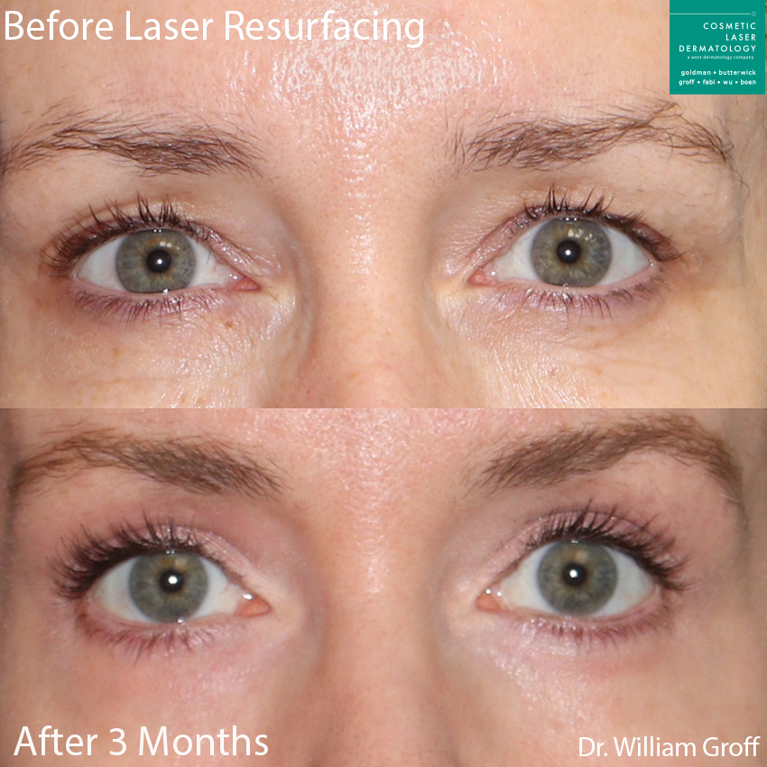Laser resurfacing to rejuvenate the skin around the eyes by Dr. Groff. Disclaimer: Results may vary from patient to patient. Results are not guaranteed.