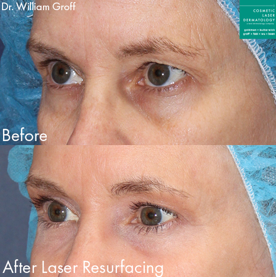 Laser resurfacing to refresh eye area by Dr. Groff. Disclaimer: Results may vary from patient to patient. Results are not guaranteed.