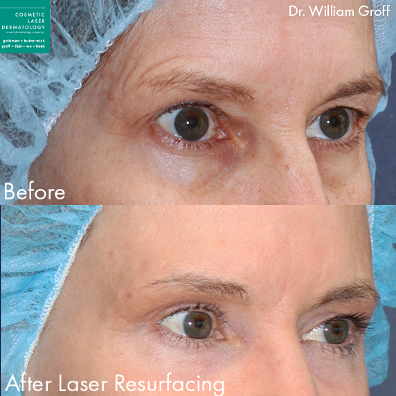 Laser resurfacing to rejuvenate area around eyes by Dr. Groff. Disclaimer: Results may vary from patient to patient. Results are not guaranteed.
