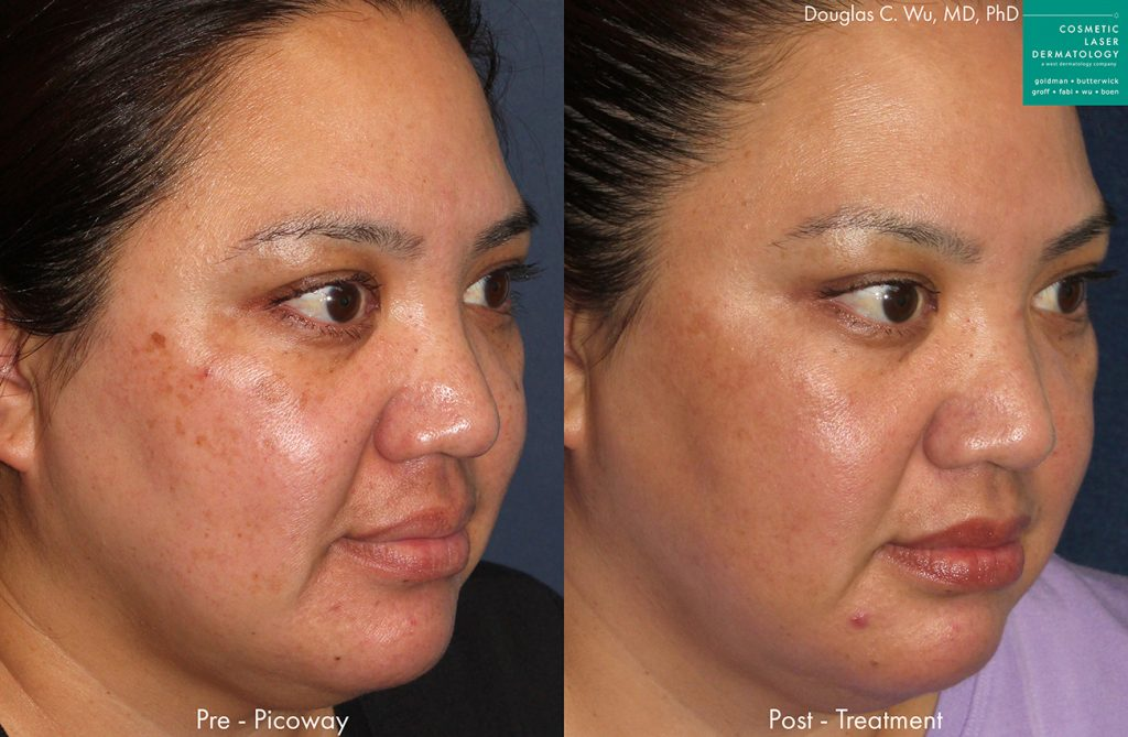 PicoWay to remove brown spots and hyperpigmentation by Dr. Wu. Disclaimer: Results may vary from patient to patient. Results are not guaranteed.