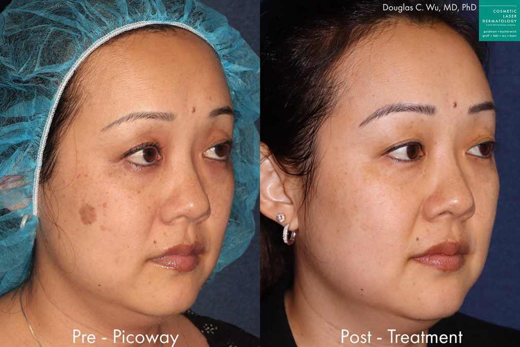 PicoWay laser to remove brown spots and hyperpigmentation by Dr. Wu. Disclaimer: Results may vary from patient to patient. Results are not guaranteed.