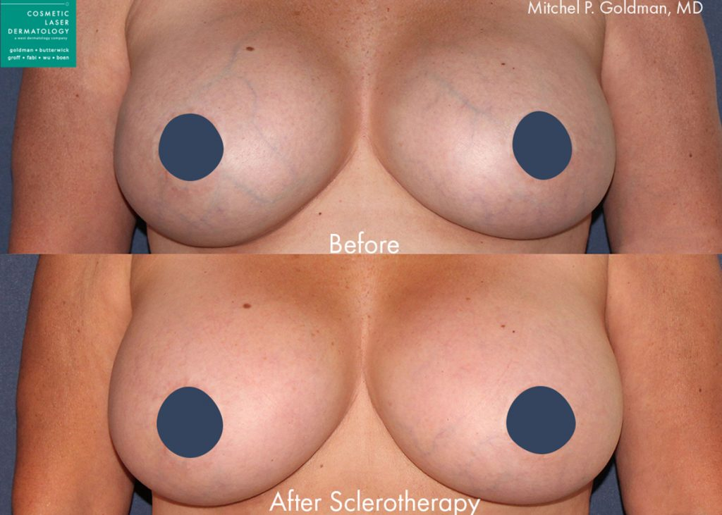 Sclerotherapy to treat breast veins by Dr. Goldman. Disclaimer: Results may vary from patient to patient. Results are not guaranteed.