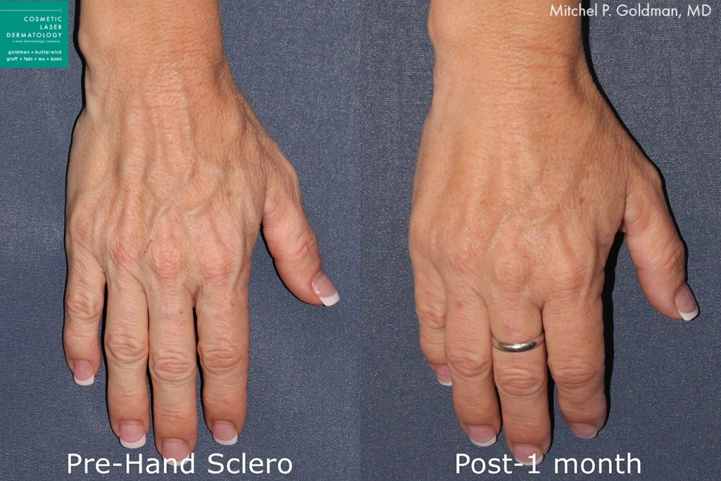 Sclerotherapy for hand veins by Dr. Goldman. Disclaimer: Results may vary from patient to patient. Results are not guaranteed.