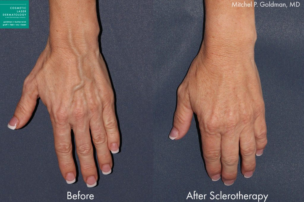 Sclerotherapy to treat hand veins by Dr. Goldman. Disclaimer: Results may vary from patient to patient. Results are not guaranteed.