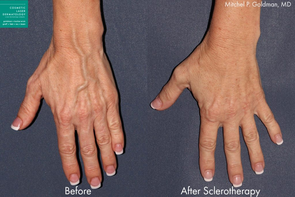 Slerotherapy to treat hand veins by Dr. Goldman. Disclaimer: Results may vary from patient to patient. Results are not guaranteed.