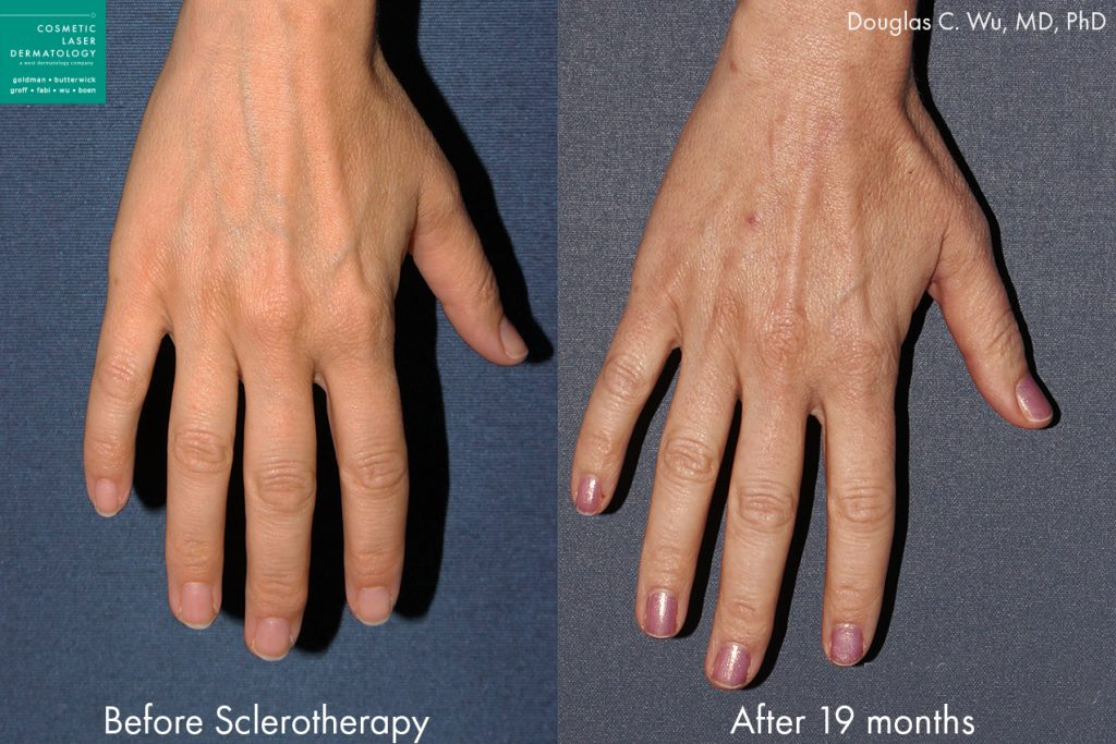 Sclerotherapy to treat hand veins by Dr. Wu. Disclaimer: Results may vary from patient to patient. Results are not guaranteed.