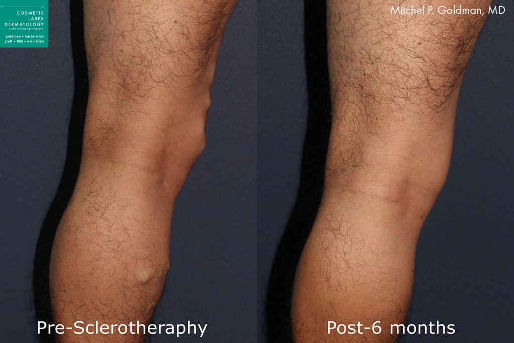 Sclerotherapy to remove leg veins by Dr. Goldman. Disclaimer: Results may vary from patient to patient. Results are not guaranteed.