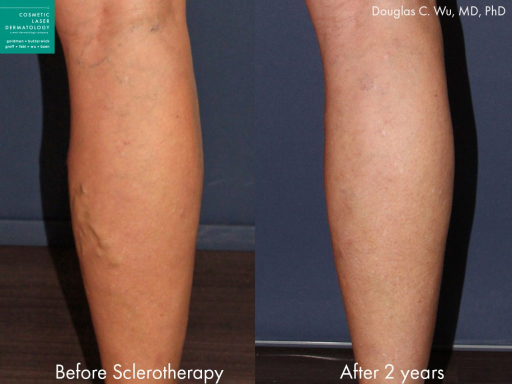 Sclerotherapy to treat varicose veins in the leg by Dr. Wu. Disclaimer: Results may vary from patient to patient. Results are not guaranteed.