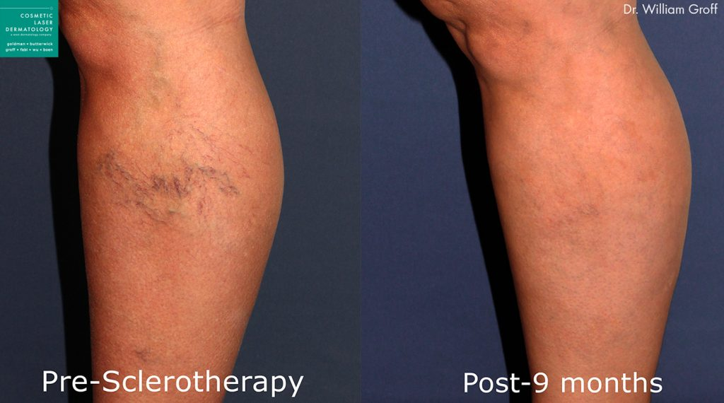 Sclerotherapy to remove spider veins by Dr. Groff. Disclaimer: Results may vary from patient to patient. Results are not guaranteed.