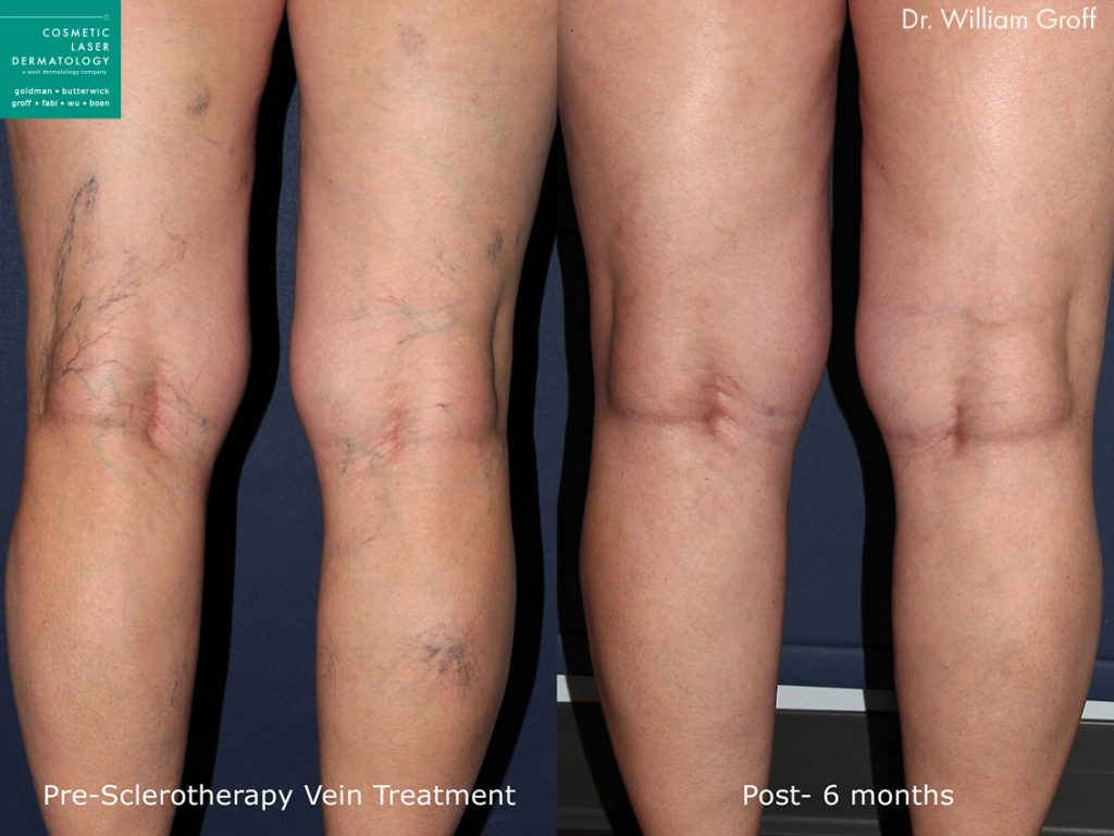 Sclerotherapy to remove visible leg veins by Dr. Groff. Disclaimer: Results may vary from patient to patient. Results are not guaranteed.
