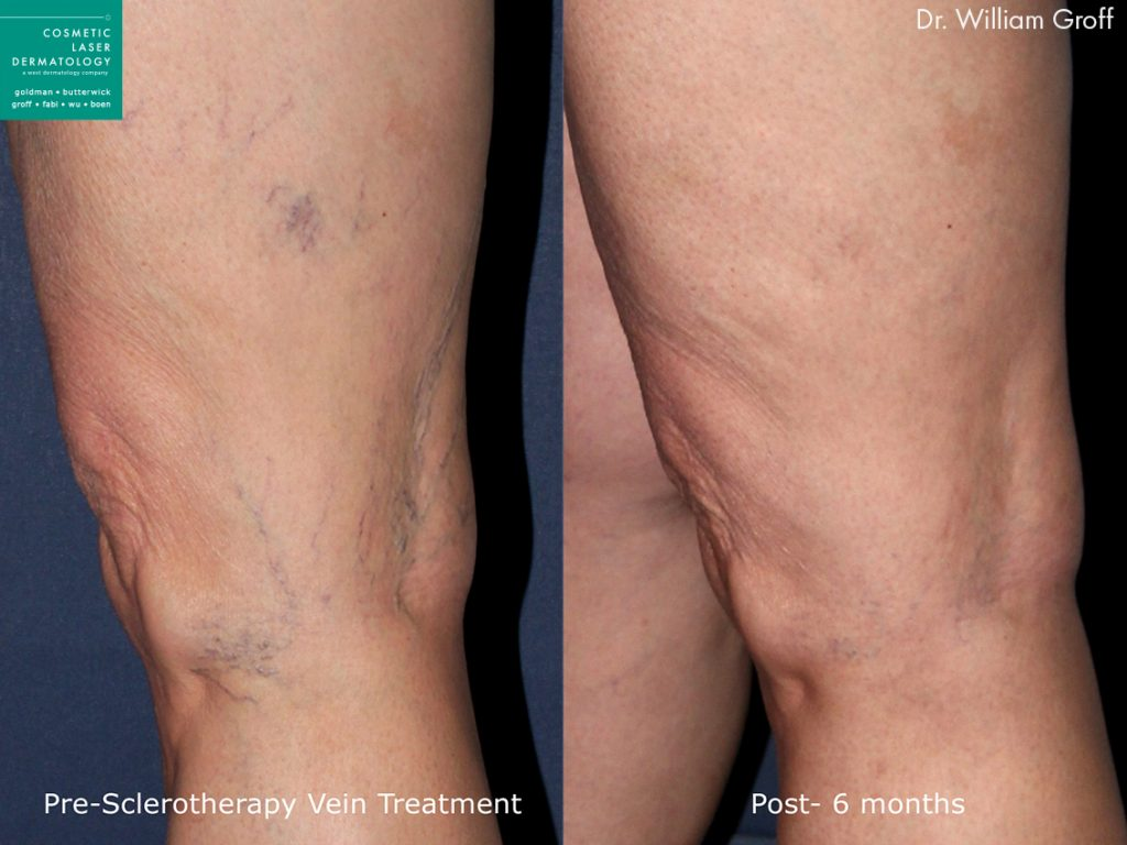 Sclerotherapy to treat visible leg veins by Dr. Groff. Disclaimer: Results may vary from patient to patient. Results are not guaranteed.