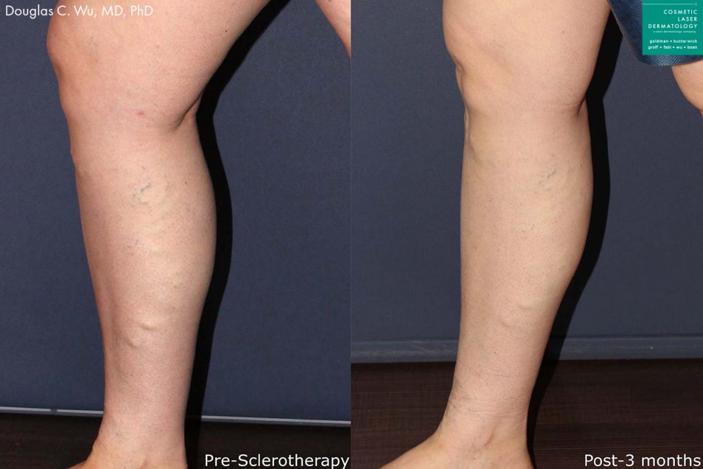 Sclerotherapy to remove bulging varicose veins from the leg by Dr. Wu. Disclaimer: Results may vary from patient to patient. Results are not guaranteed.