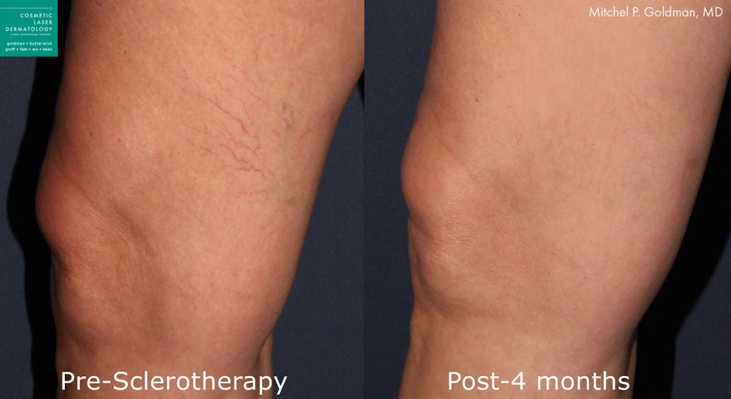 Sclerotherapy to treat leg veins by Dr. Goldman. Disclaimer: Results may vary from patient to patient. Results are not guaranteed.