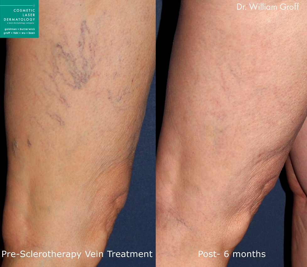 Sclerotherapy to remove leg veins by Dr. Groff. Disclaimer: Results may vary from patient to patient. Results are not guaranteed.