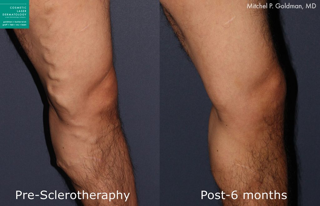 Sclerotherapy to treat varicse veins by Dr. Goldman. Disclaimer: Results may vary from patient to patient. Results are not guaranteed.