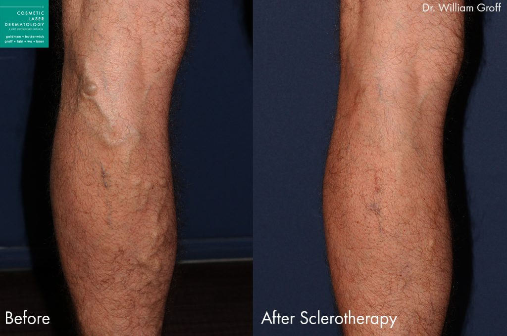 Sclerotherapy to treat leg veins by Dr. Groff. Disclaimer: Results may vary from patient to patient. Results are not guaranteed.