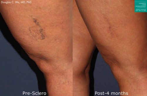 Sclerotherapy to treat leg veins by Dr. Wu. Treatment eliminates visible vein to produce clearer skin.
