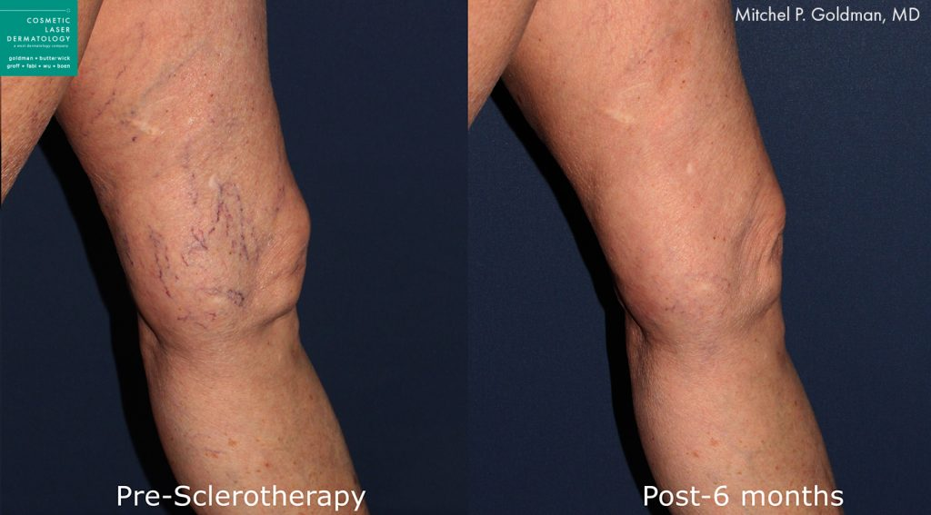 Sclerotherapy to eliminate leg veins by Dr. Goldman. Disclaimer: Results may vary from patient to patient. Results are not guaranteed.