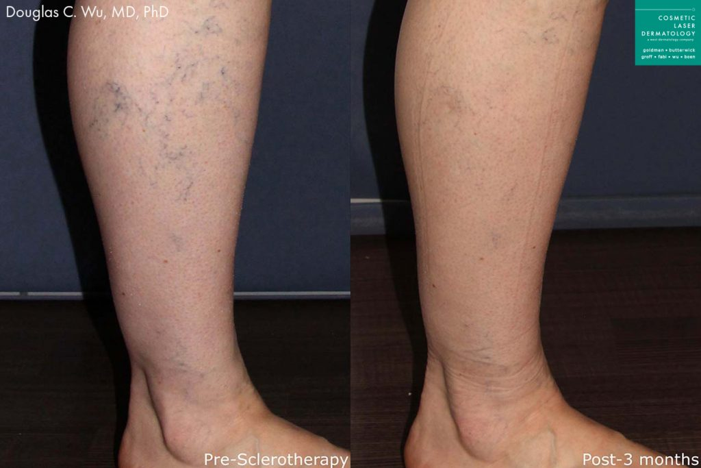 Sclerotherapy to treat visible leg veins by Dr. Wu. Disclaimer: Results may vary from patient to patient. Results are not guaranteed.