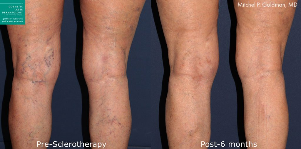 Sclerotherapy to treat visible leg veins by Dr. Goldman. Disclaimer: Results may vary from patient to patient. Results are not guaranteed.