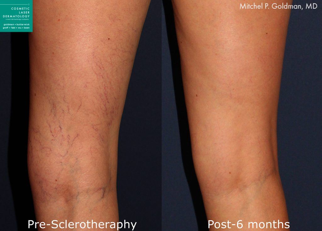 Sclerotherapy to treat visible veins by Dr. Goldman. Disclaimer: Results may vary from patient to patient. Results are not guaranteed.