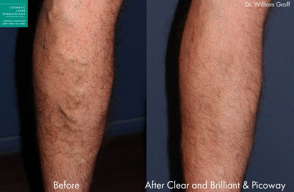 Sclerotherapy to remove bulging leg veins by Dr. Groff. Disclaimer: Results may vary from patient to patient. Results are not guaranteed.