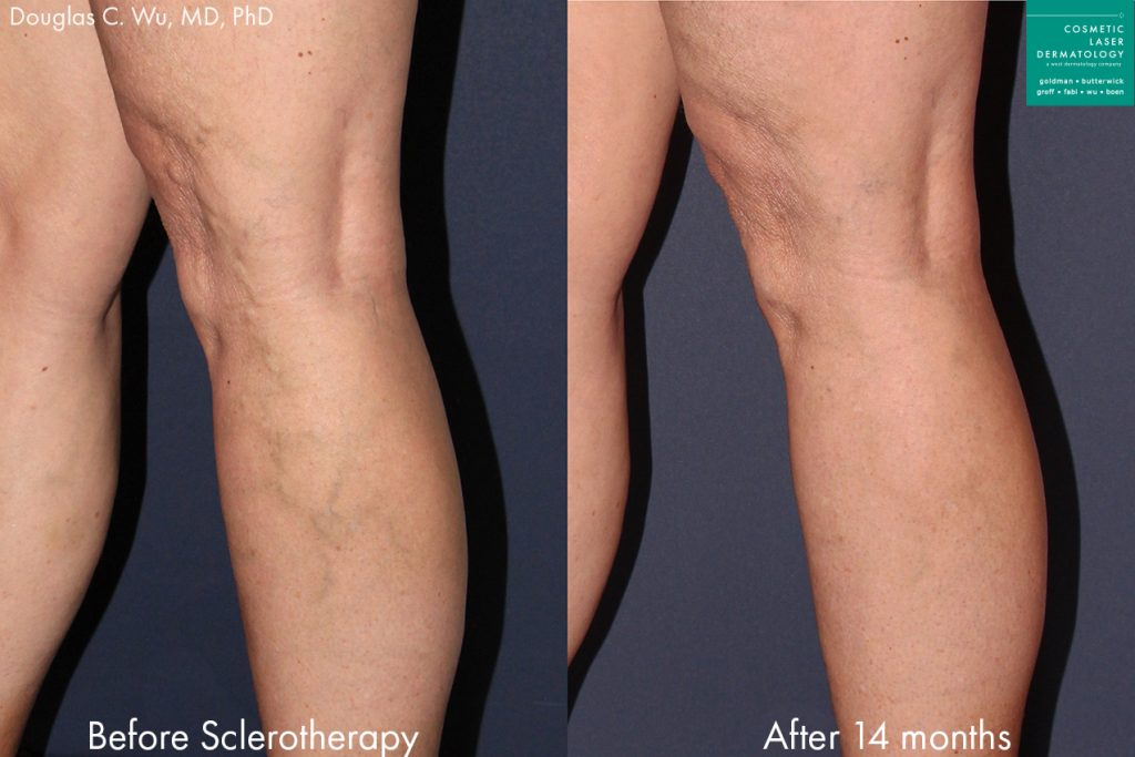 Sclerotherapy to remove spider veins by Dr. Wu. Disclaimer: Results may vary from patient to patient. Results are not guaranteed.
