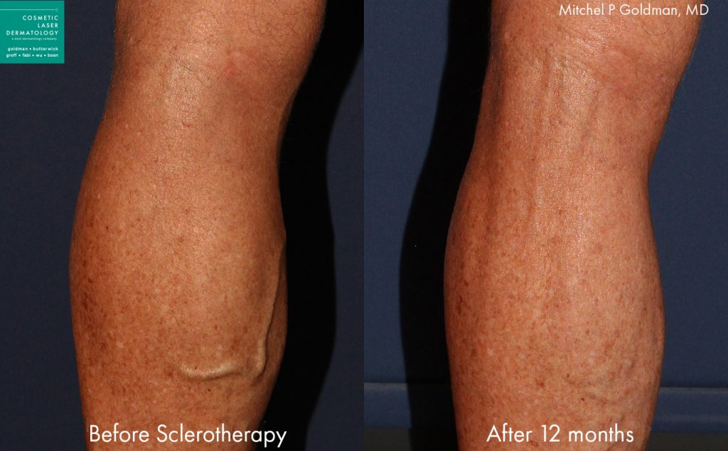 Sclerotherapy to treat varicose veins by Dr. Goldman. Disclaimer: Results may vary from patient to patient. Results are not guaranteed.