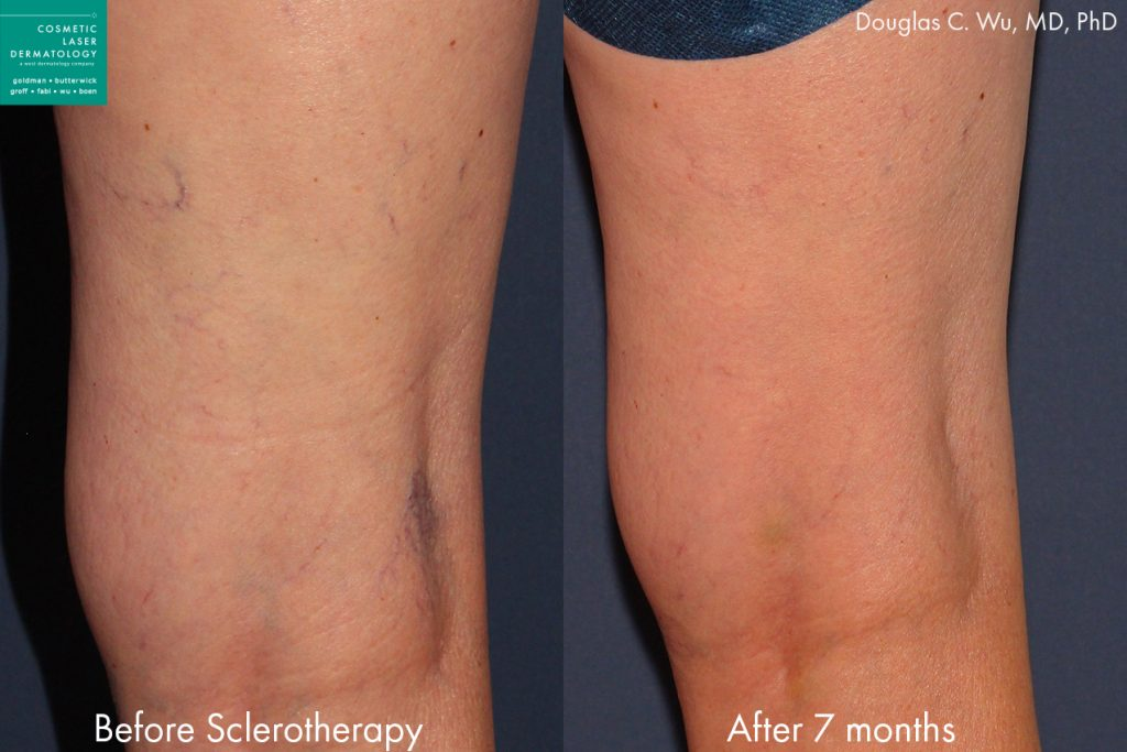 Sclerotherapy to treat leg veins by Dr. Wu. Disclaimer: Results may vary from patient to patient. Results are not guaranteed.