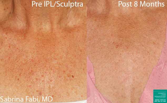 Sculptra and IPL for chest rejuvenation by Dr. Fabi. Disclaimer: Results may vary from patient to patient. Results are not guaranteed.