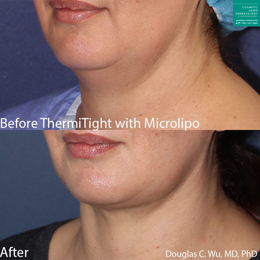 ThermiTight and microlipo to treat submental fat and contour the jawline by Dr. Wu. Disclaimer: Results may vary from patient to patient. Results are not guaranteed.