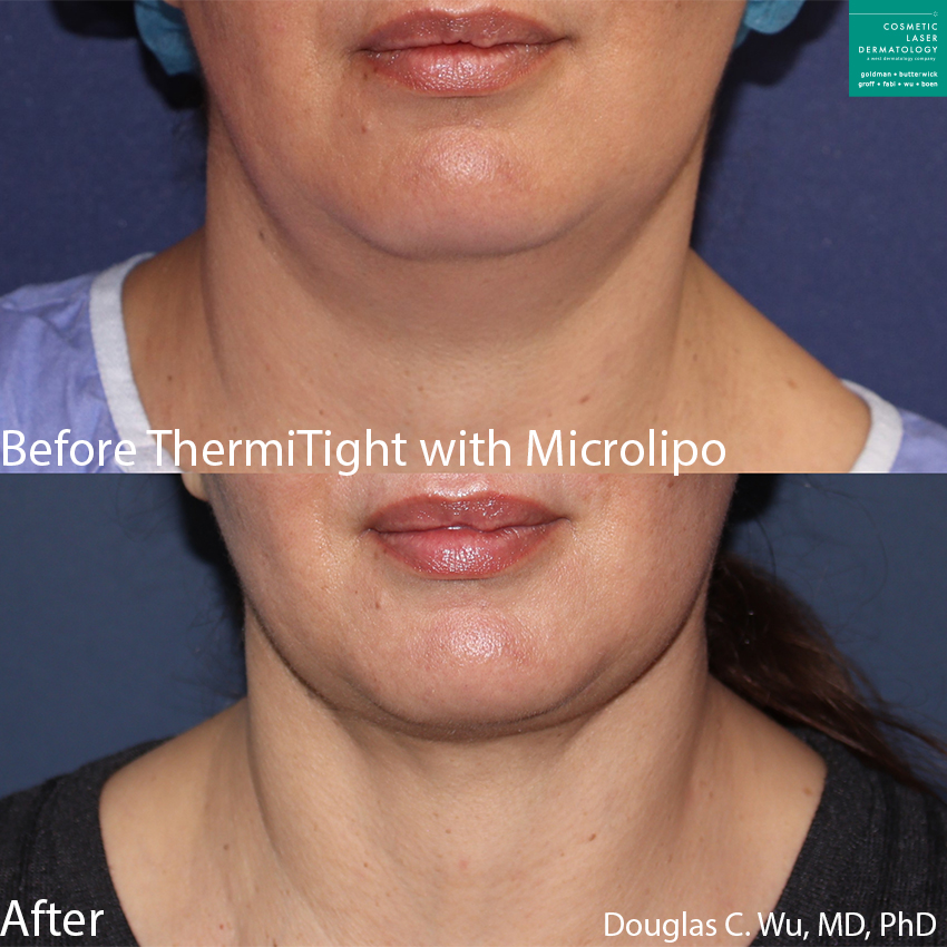 ThermiTight and microlipo for submental fat and to contour the jawline by Dr. Wu. Disclaimer: Results may vary from patient to patient. Results are not guaranteed.